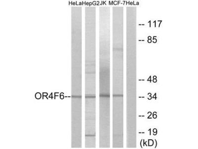 OR4F6 Polyclonal Antibody