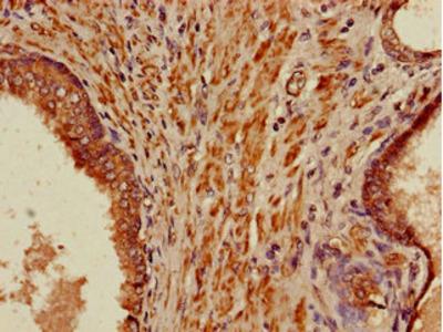 PIH1D3 Antibody