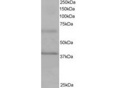 Goat Polyclonal Antibody against ABTB1