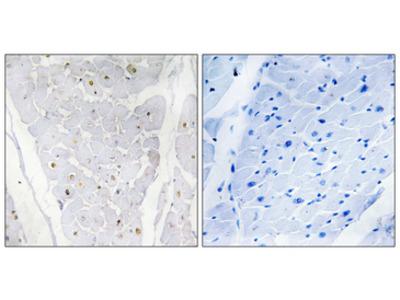 HAK / ALPK2 Antibody