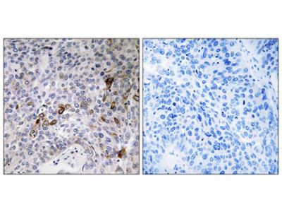 RAB11FIP3 Polyclonal Antibody