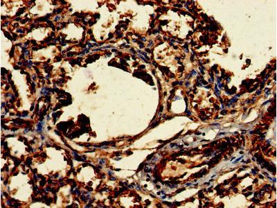 CLRN2 Antibody