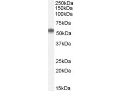 Goat Polyclonal Antibody against BTBD14B