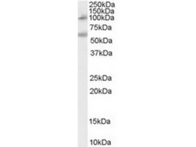 Goat Polyclonal Antibody against CARD15