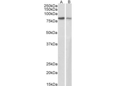 Goat Polyclonal Antibody against Plakoglobin / Gamma-catenin
