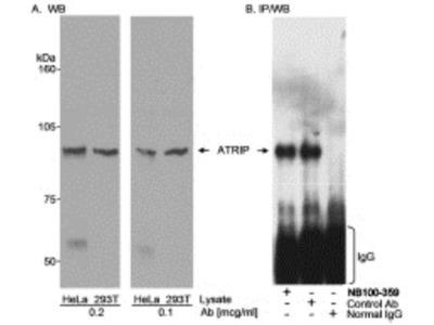 Rabbit Polyclonal Antibody against ATRIP