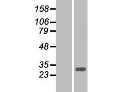 Transient overexpression lysate of ADP-ribosylation factor-like 10 (ARL10)
