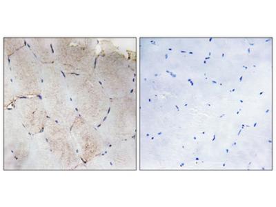 Collagen XII Alpha 1 Antibody