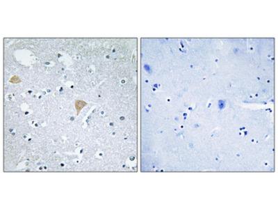 CIT / CRIK / Citron Antibody