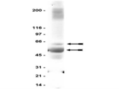 Anti-GABA A Receptor β2/3 Antibody