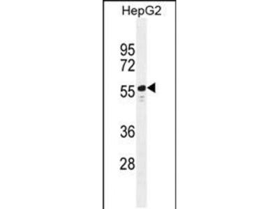 TTC6 Polyclonal Antibody