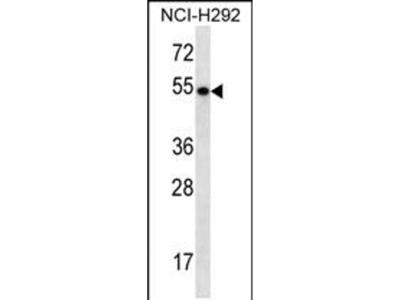 TBC1D3F Polyclonal Antibody