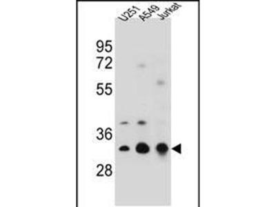 TPM4 Polyclonal Antibody
