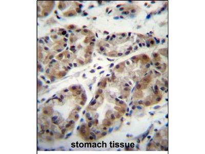 TAF8 Polyclonal Antibody