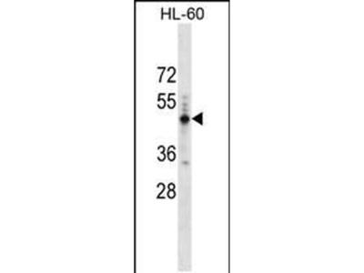 PRAMEF14 Polyclonal Antibody