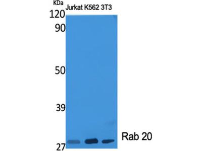 RAB20 Polyclonal Antibody