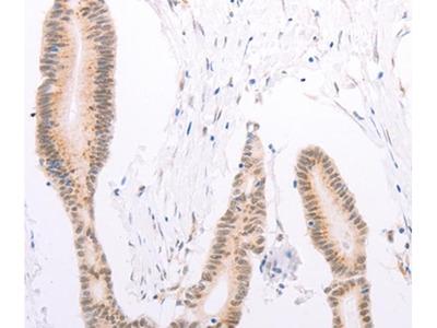 ADAM12 Antibody