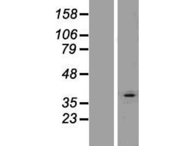 Transient overexpression lysate of 1-acylglycerol-3-phosphate O-acyltransferase 3 (AGPAT3), transcript variant 2