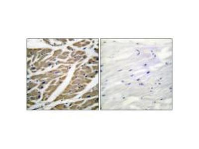 Sodium Channel Pan Polyclonal Antibody