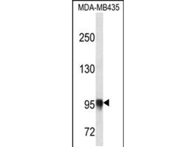 PLOD3 Polyclonal Antibody