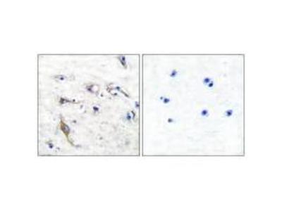 JM4 Polyclonal Antibody