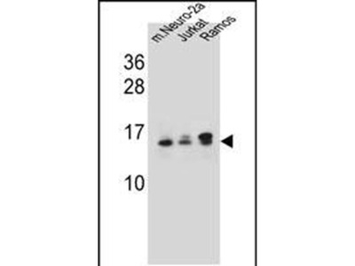 UBE2E2 Polyclonal Antibody