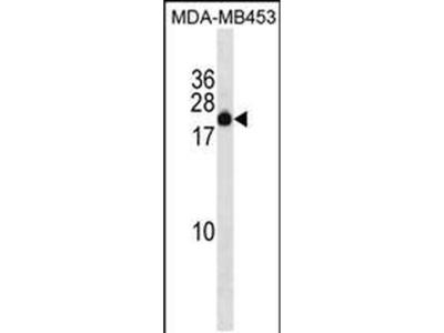 ZNF747 Polyclonal Antibody