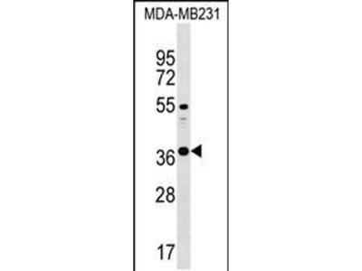 CTRB1 Polyclonal Antibody