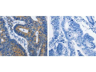 BPIFB3 Polyclonal Antibody