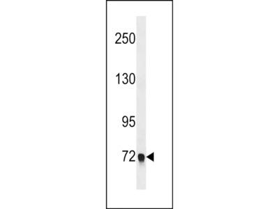 EPB41L5 Polyclonal Antibody
