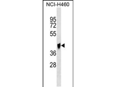 QPCTL Polyclonal Antibody