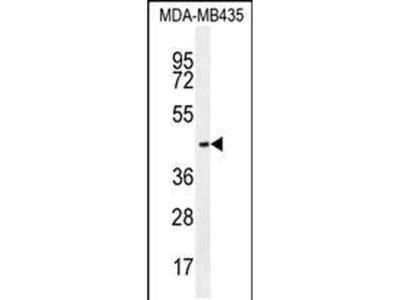 OR2L13 Polyclonal Antibody