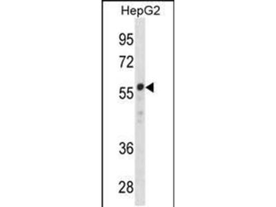 ZNF276 Polyclonal Antibody