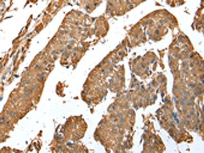 ASB9 Polyclonal Antibody