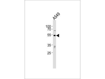 PPP2R2C Polyclonal Antibody