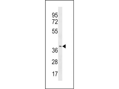 LRRC74B Polyclonal Antibody