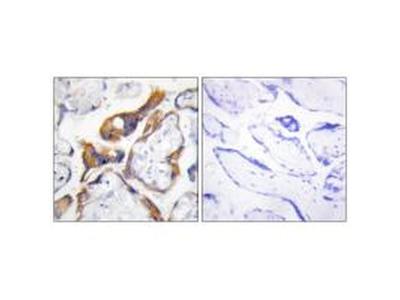 PHLDA2 Polyclonal Antibody