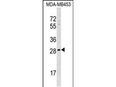AIDA Polyclonal Antibody