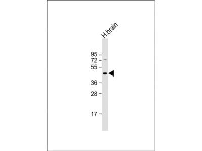 GABRR3 Polyclonal Antibody