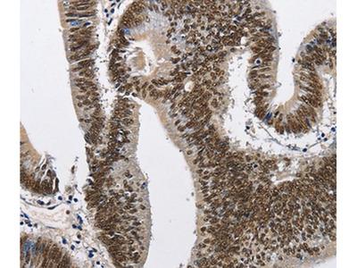 CMTM2 Polyclonal Antibody