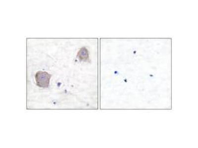 mGluR4 Polyclonal Antibody