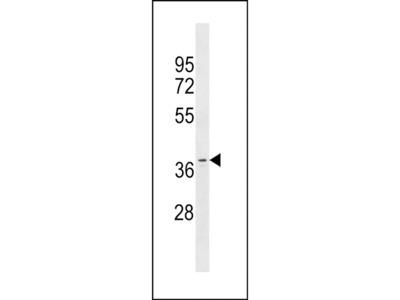 OR11A1 Polyclonal Antibody