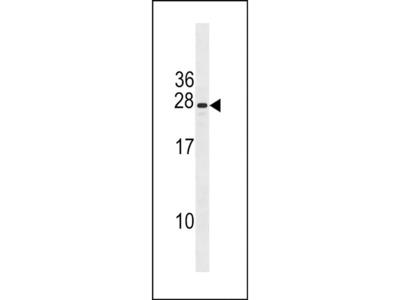 CXorf41 Polyclonal Antibody