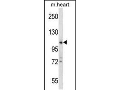ZCCHC14 Polyclonal Antibody