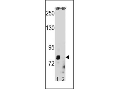 ZMAT1 Polyclonal Antibody