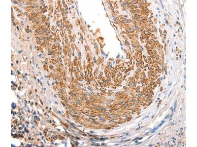 CD297 Polyclonal Antibody