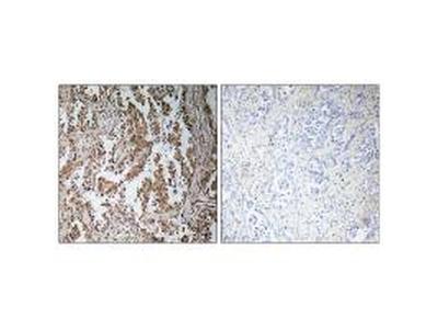 TBPL2 Antibody