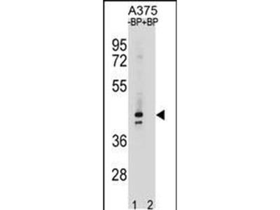 OR5AC2 Polyclonal Antibody