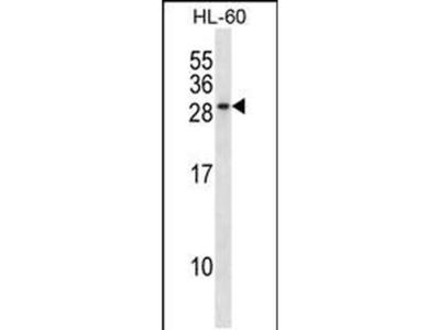 RAB15 Polyclonal Antibody
