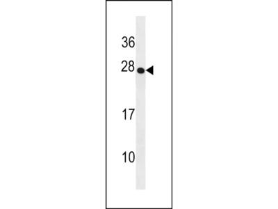 TRDC Polyclonal Antibody